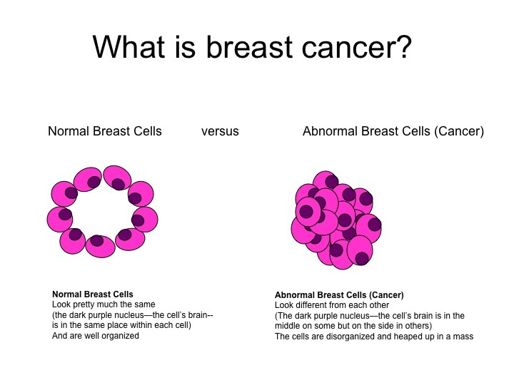 Breast cancer is a disease where malignant (cancer) cells form in the normal tissues of the breast. It occurs when healthy breast cells become abnormal, grow out of control and form a tumour (growth) in the breast. http://triplesteptowardthecure.org/understanding.php